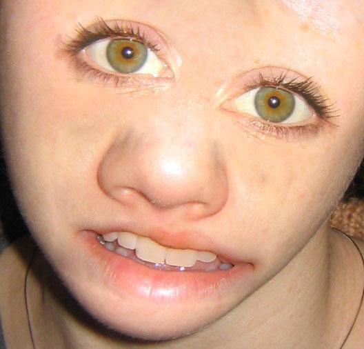 deformed face kid - 528×506